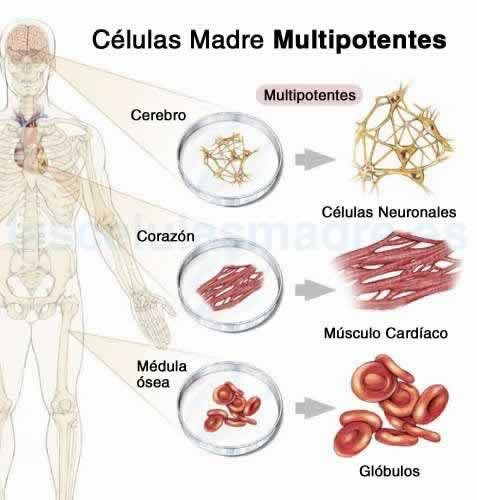 Células Madre Multipotentes